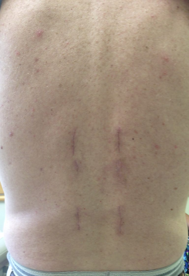 Healed incisions from a posterior spine surgery.