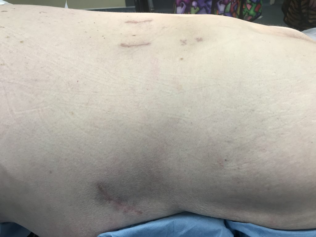 Incisions from a minimally invasive lateral interbody and posterior fusion surgery (same as above).